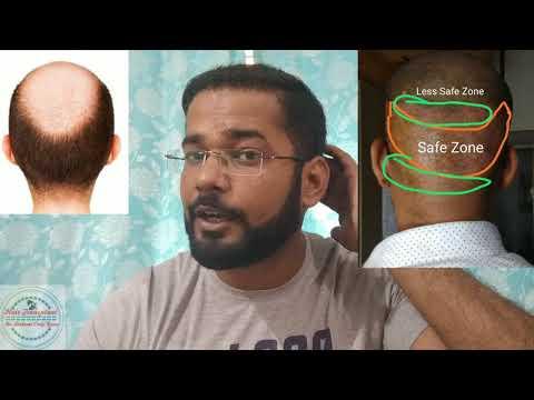 Life of Hair Transplant Surgery - Transplanted Hair Are Natural? - Kya Baal Doobara Jhad Jaate Hai?