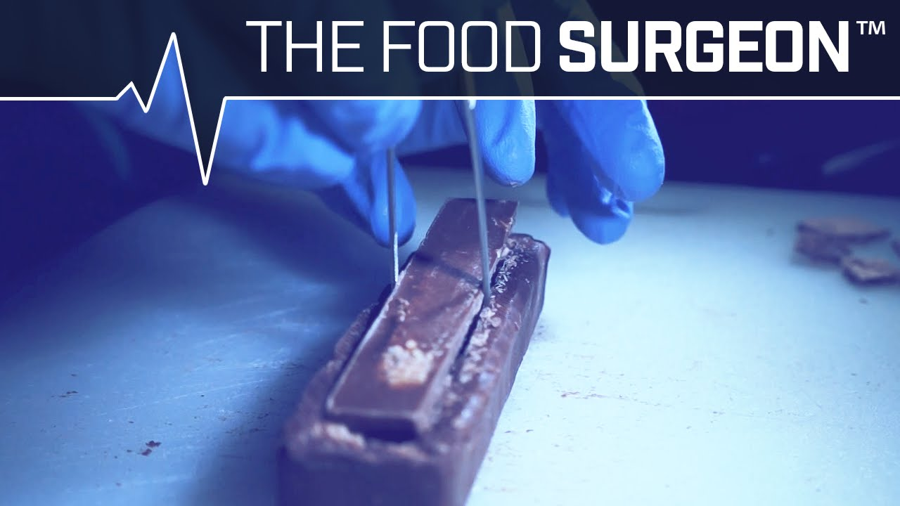 food surgeons kitkat and 3 musketeers transplant business insider