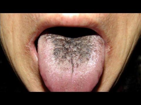 La porque lengua tengo oscuras manchas en