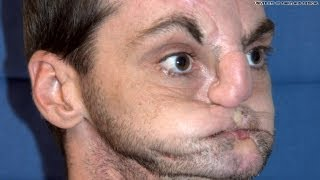 Face Transplant After Being Shot In The Face!