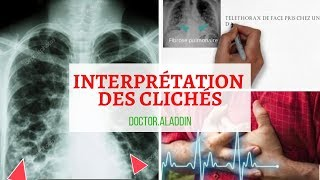 Maitriser l'interprétation des clichés /Cancer Bronchiqe + adénopathie