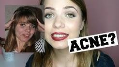 hqdefault - Anticonceptiepil Yasmin Tegen Acne