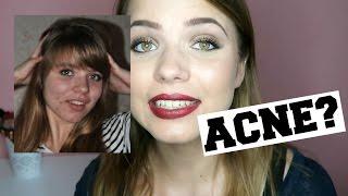 Hoe ik van acné afkwam + ervaring met de pil | Kristina K ❤
