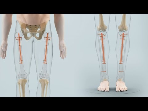 Cosmetic limb lengthening | Betzinstitute
