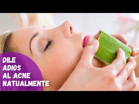 Como usar la sabila para las cicatrices - que es bueno para las cicatrices