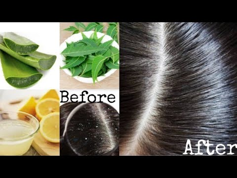 how-to-cure-dandruff-and-hair-fall-control-in-tamil