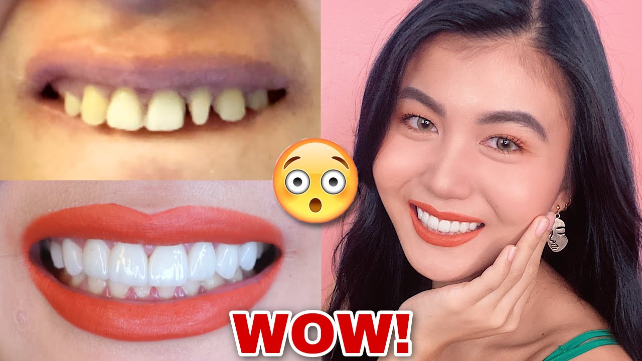 SMILE MAKEOVER 😀 (PORCELAIN VENEERS) COST, PROCEDURE, EXPERIENCE | PHILIPPINES