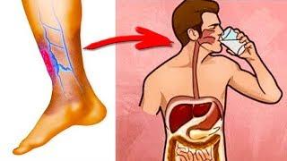 Как разжижать Густую кровь без таблеток? Профилактика Атеросклероза и Тромбофлебита.