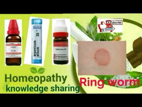 ringworm! [hindi] Homeopathic medicine for ringworm? explain by Dr