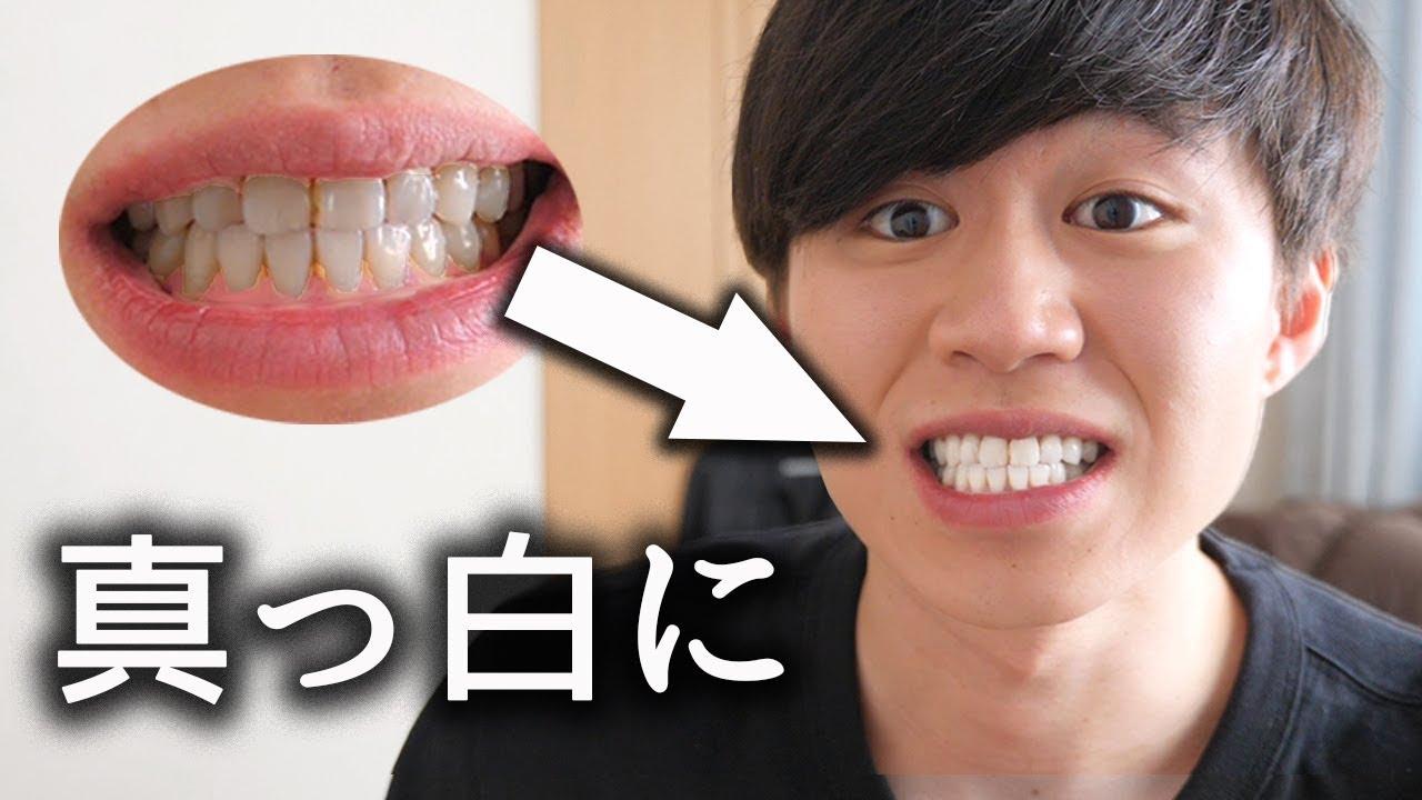 歯を白くする方法 アルミホイル