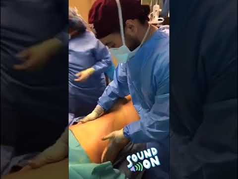 Liposuction all around with a fat transfer to the butt by Dr. Scottsdale