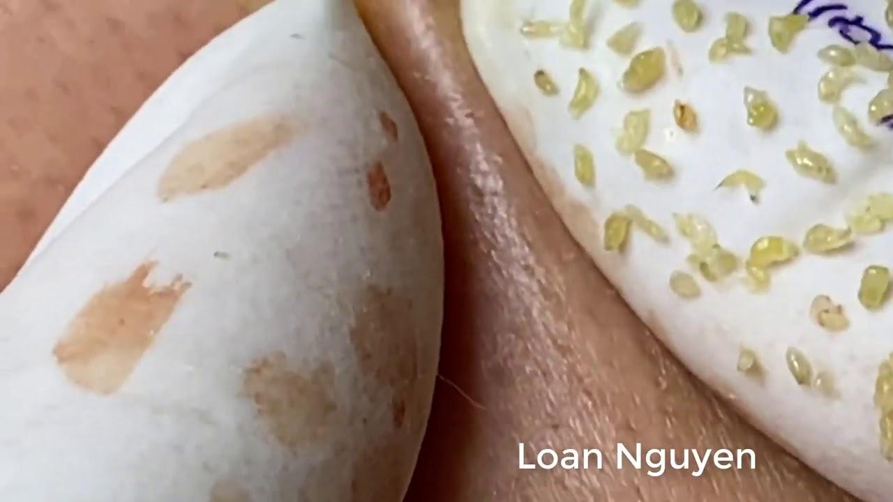 Blackheads treatment (n31) | Loan Nguyen