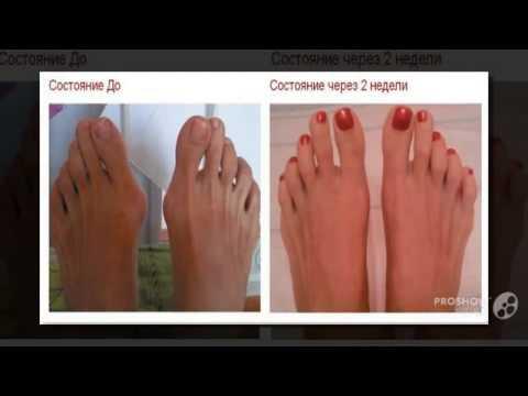 Косточка на большом пальце ноги лечение проявление симптомы