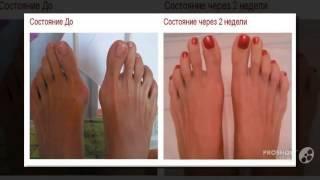 """хрустит косточка на ноге      -  Дефект """"шишек"""" на ноге??(http://rabotadoma.luzani.ru/valgus/ Средство """"Valgus Pro"""" с огромной скидкой Фиксатор """"Valgus Pro"""" от концерна"""