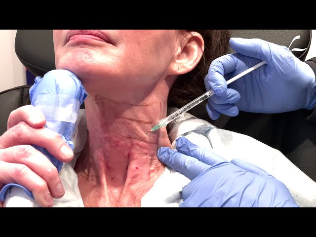 Dallas MesoBotox/Mesotox for the Neck by Dr. Lam