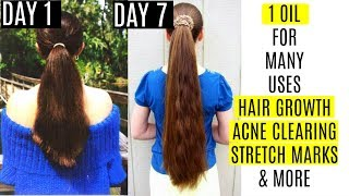 1 Magical Oil For Fast Hair Growth,Long lashes ,Acne Spots & Stretch marks | SUPERPRINCESSJO