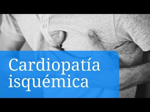 Cardiopatia isquémica. Primeros síntomas, causas y tratamientos