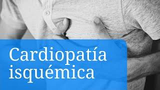 De microcardia causas