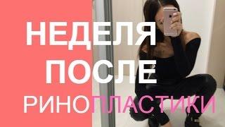 Ринопластика | Неделя После Операции Пластика Носа ❤ Анастасия Лисова(, 2016-09-23T17:25:58.000Z)