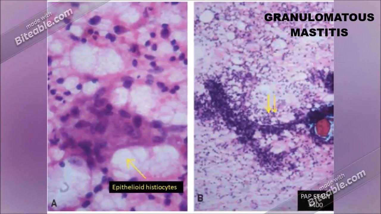 több nemi szerv szemölcsének kezelése széles spektrumú parazita gyógyszer gyermekek számára