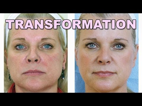 Janet's Skincare Transformation with Dr. Lisa Airan from YouTube · Duration:  1 minutes 58 seconds