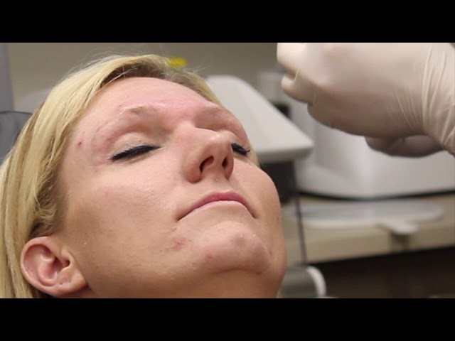 Colorado Springs Dr John Burroughs Performing Live Wrinkle Blocker