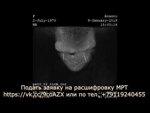 На расшифровке МРТ малого таза у женщины обнаружена киста левого яичника