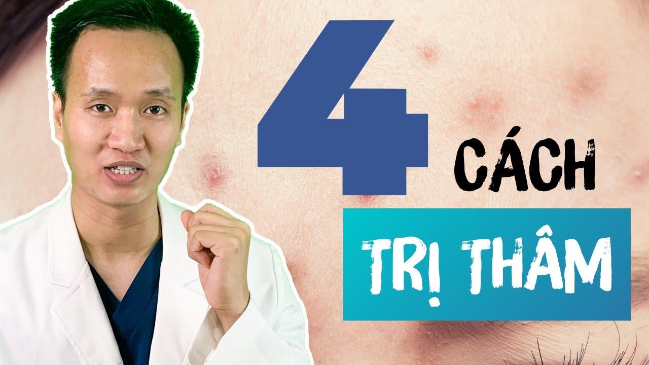 Trị thâm MỤN – 4 Cách đơn giản HIỆU QUẢ bỏ túi [Phần 1]  –  TIPS Skincare Routines | Dr Hiếu