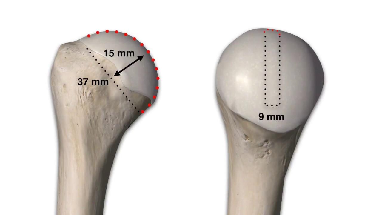 Treatment Of Bipolar Bone Loss Fresh Osteochondral Distal Tibia
