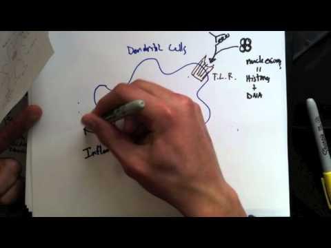 Systemic Lupus Erythematosus Pathophysiology Youtube