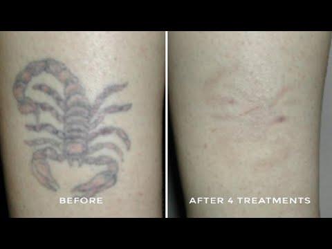 Tattoo Removal Austin - Fresh Start Laser Clinic | Collar Tattoo ...