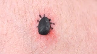 DEADLIEST TICK EVER!