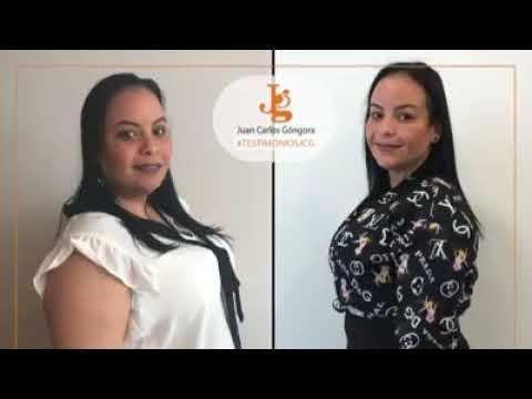 Testimonio Cirugía Bariátrica | Sleeve Gástrico