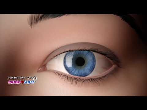 """""""ตาบอดสี"""" ความผิดปกติในการแยกแยะสีส่งผลต่อชีวิตประจำวัน : พบหมอรามา ช่วง Big Story 14 ธ.ค.60 (3/6)"""