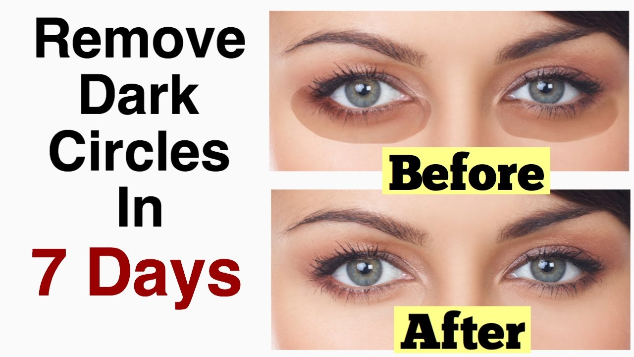 How to Remove Under Eye Dark Circles in 7 days