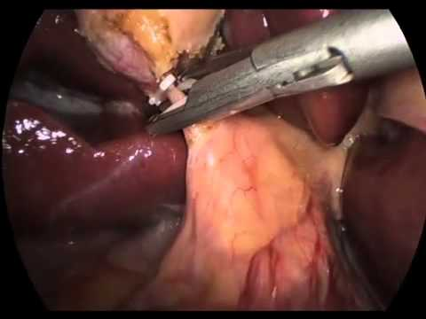 Laparoscopic Cholecystectomy for a Gallbladder Polyp and Liver Biopsy for Hepatitis.mov