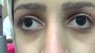 See saw nystagmus is a localizing nystagmus to lesions of the sella...