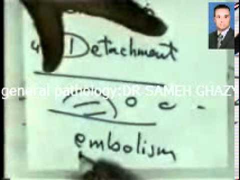 general pathology16 :embolism thrombus DR SAMEH GHAZY