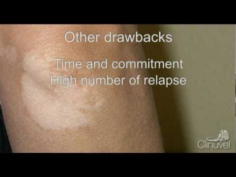 Vitiligo and Stem Cells: Narrowband UVB Phototherapy in Nonsegmental  Vitiligo