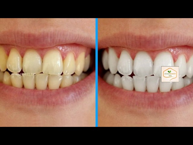 How to Remove Plaque and Tartar from Your Teeth To Shiny Whiten Teeth