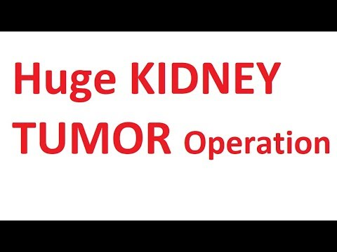 Huge Kidney Tumor ; Radical Nephrectomy and Salvage Splenectomy