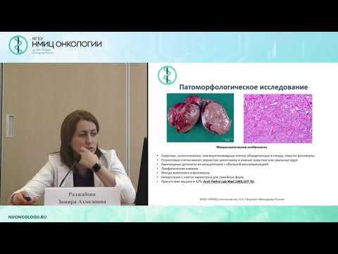 Медуллярный рак щитовидной железы, диагностика, лечение