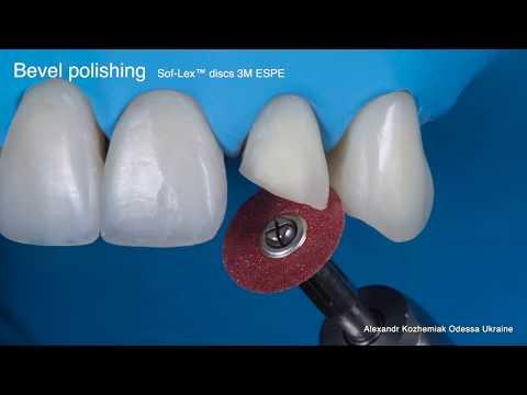 "Educational video ""Direct restoration of frontal teeth"" Part 2 - Finishing & Polishing"