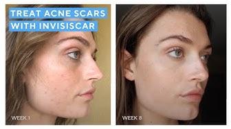 hqdefault - Murad Post-acne Marks Regimen