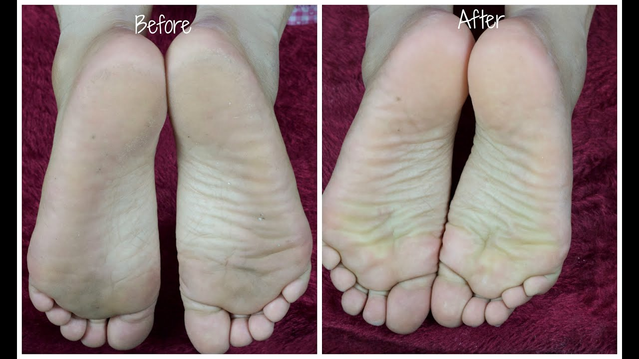 Diy pedicure how to get rid of dry and cracked heels at home diy pedicure how to get rid of dry and cracked heels at home mini pedicure youtube solutioingenieria Gallery