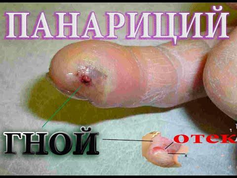 Как вылечить панариций. Схема лечения#малиновский