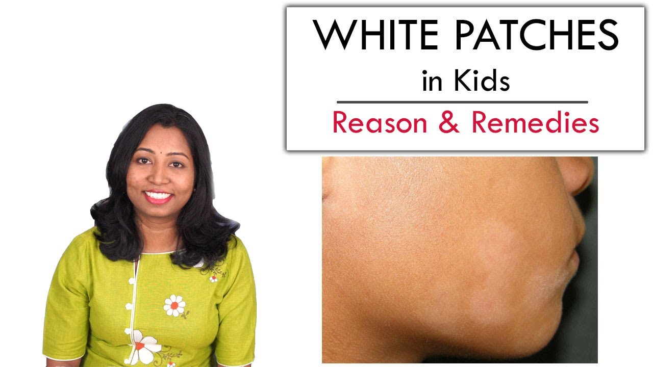 White Patches In Kids Face Reason Care Remedy Youtube