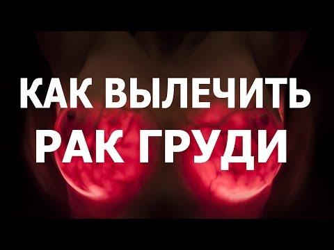 Онкология груди -