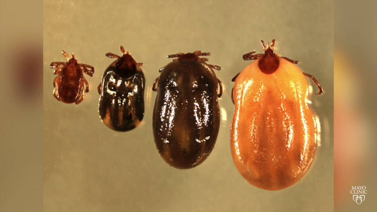 It's tick time, and Lyme season, in the Capital Region