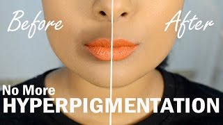 Hide Darkness Around Mouth Using BLUSH - The Correct Way To Color Correct - MrJovitaGeorge